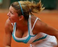 Tenista quer reduzir os seios