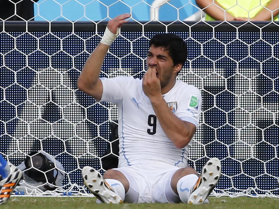 Suárez e as mordidelas: «Outros partem pernas e narizes»