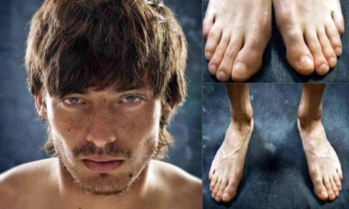 Como são os pés de jogadores de futebol