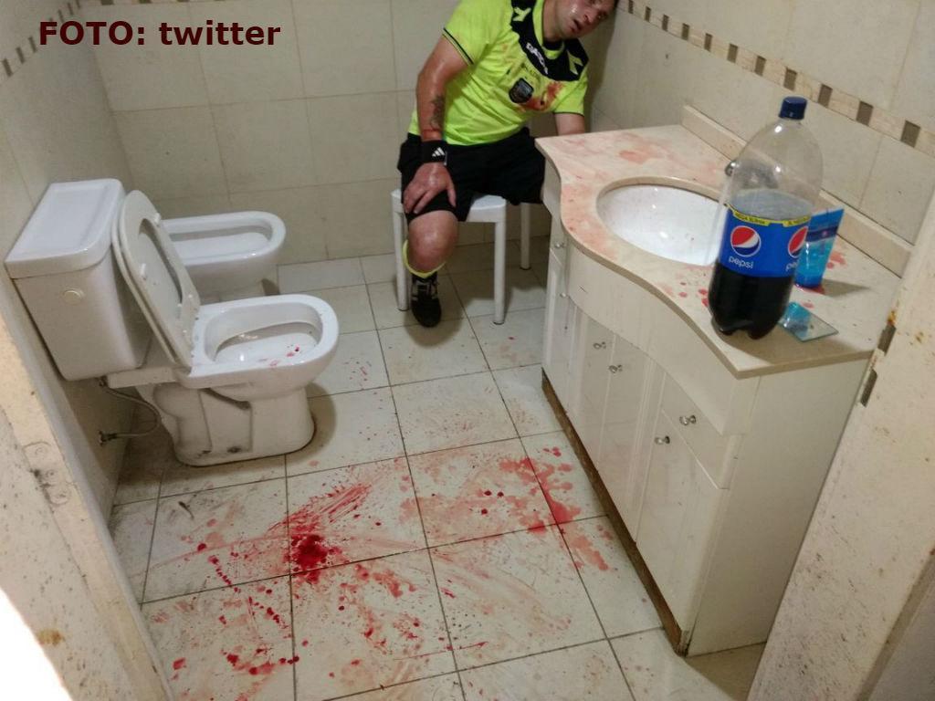 VÍDEO: árbitro ficou neste estado após agressão brutal