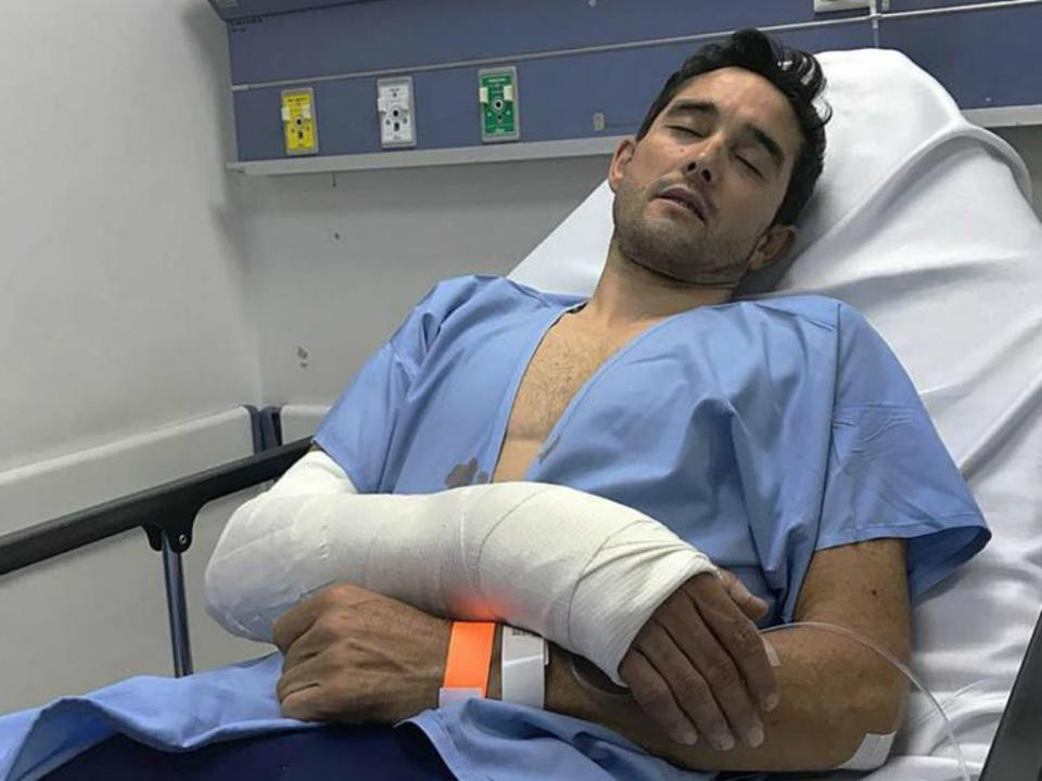 Ciclismo: Óscar Sevilla roubado e agredido durante treino