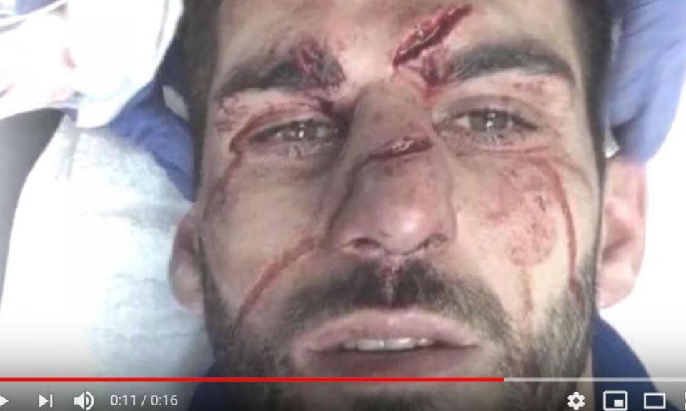 VÍDEO: o pisão na cara que deixou Nélson Oliveira irreconhecível
